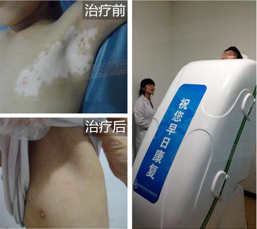 【川内首家】我院受邀第十三届中国皮肤科医师年会